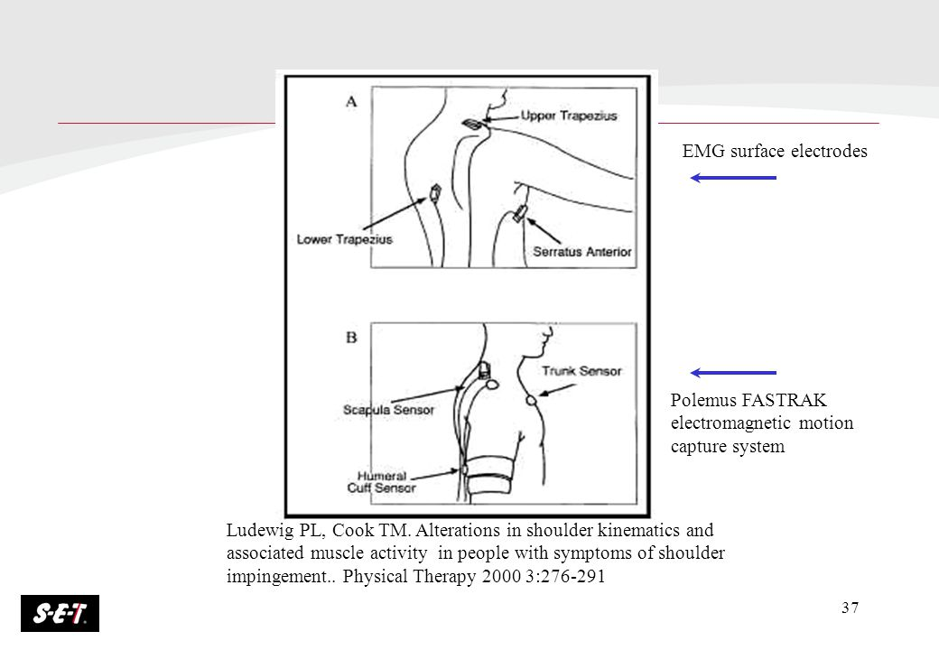 37 Ludewig PL, Cook TM. Alterations in shoulder kinematics and associated muscle activity in people with symptoms of shoulder impingement.. Physical T