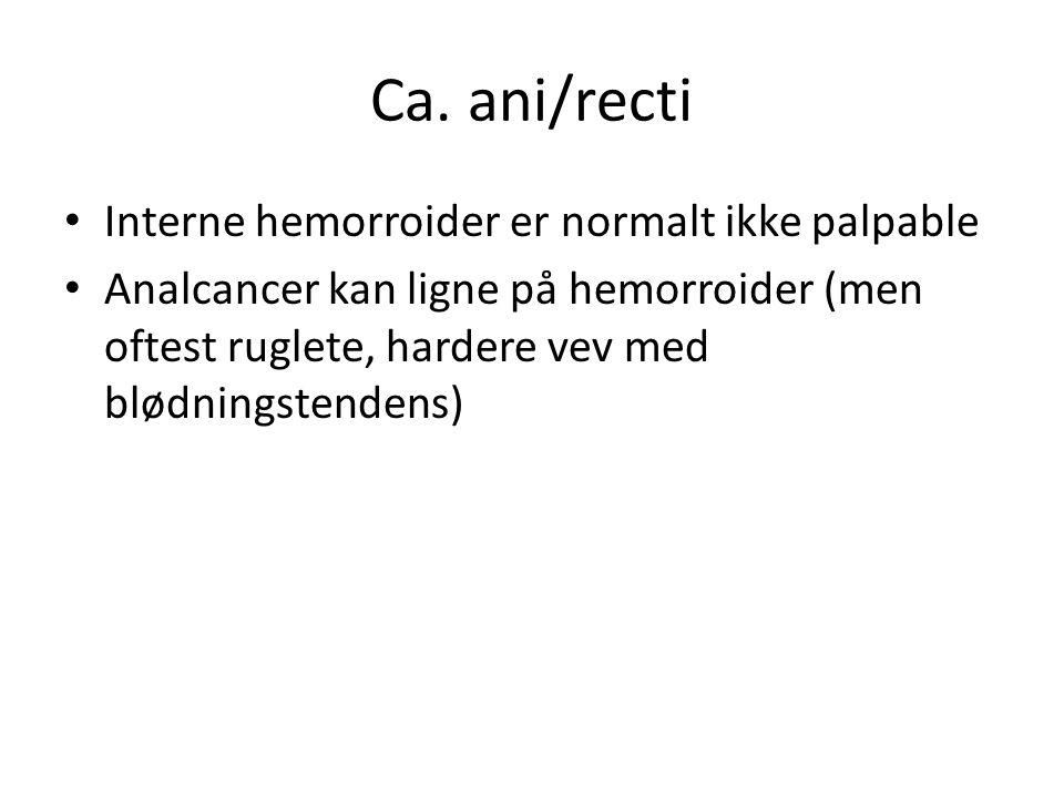 Ca. ani/recti Interne hemorroider er normalt ikke palpable Analcancer kan ligne på hemorroider (men oftest ruglete, hardere vev med blødningstendens)