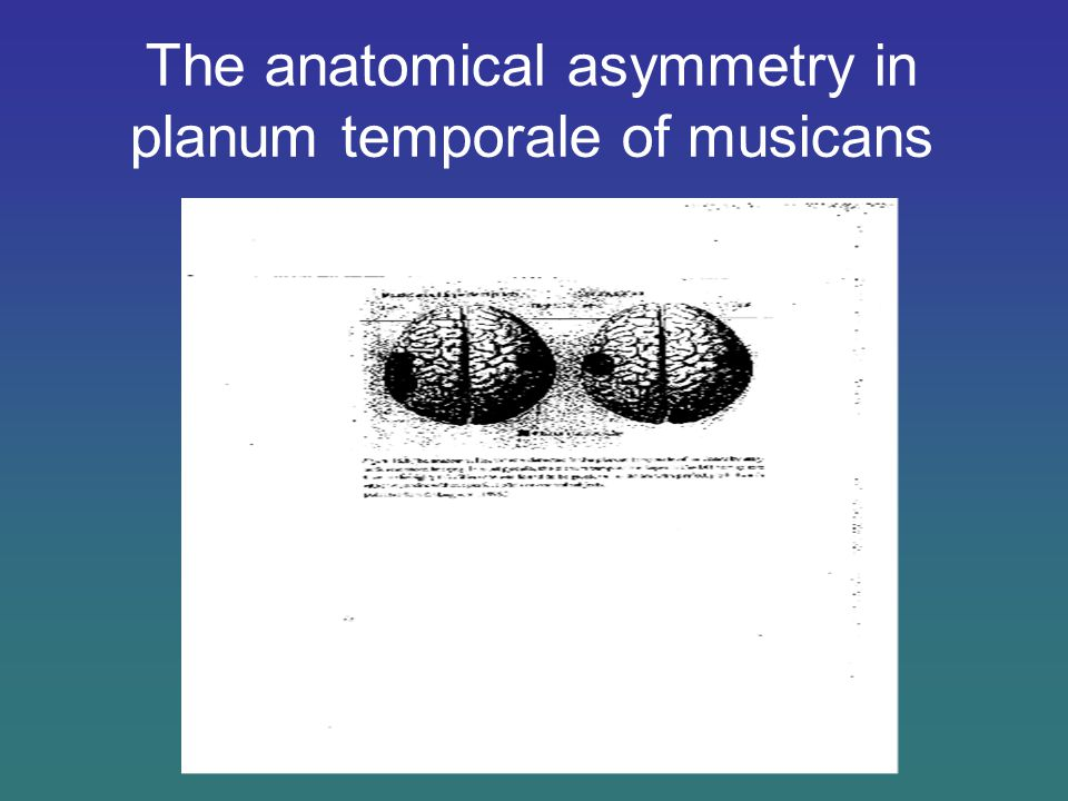 The anatomical asymmetry in planum temporale of musicans