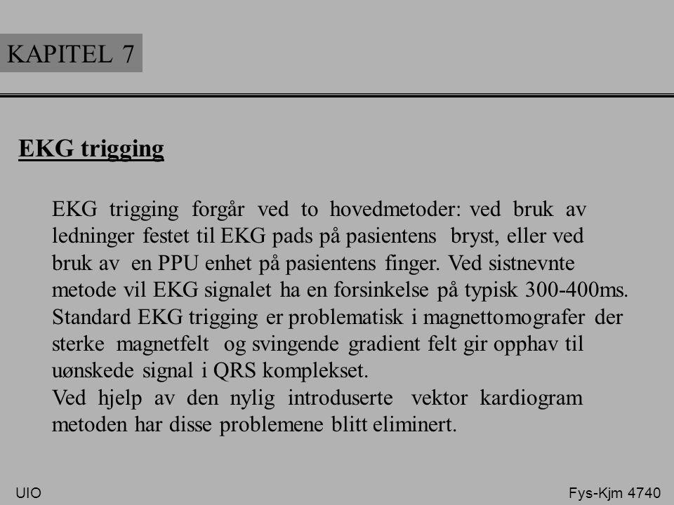 KAPITEL 7 EKG trigging EKG trigging forgår ved to hovedmetoder: ved bruk av ledninger festet til EKG pads på pasientens bryst, eller ved bruk av en PP