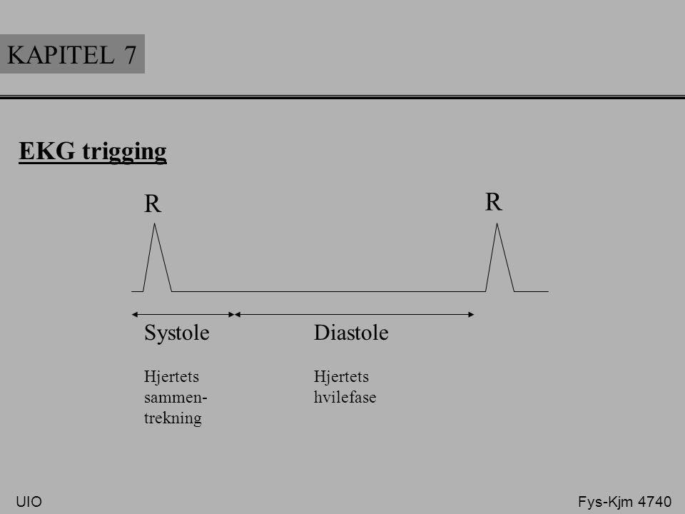 KAPITEL 7 EKG trigging R R Systole Diastole Hjertets sammen- hvilefase trekning UIO Fys-Kjm 4740