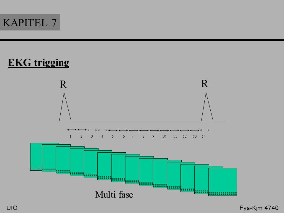 KAPITEL 7 EKG trigging R R 1 2 3 4 5 6 7 8 9 10 11 12 13 14 Multi fase UIO Fys-Kjm 4740