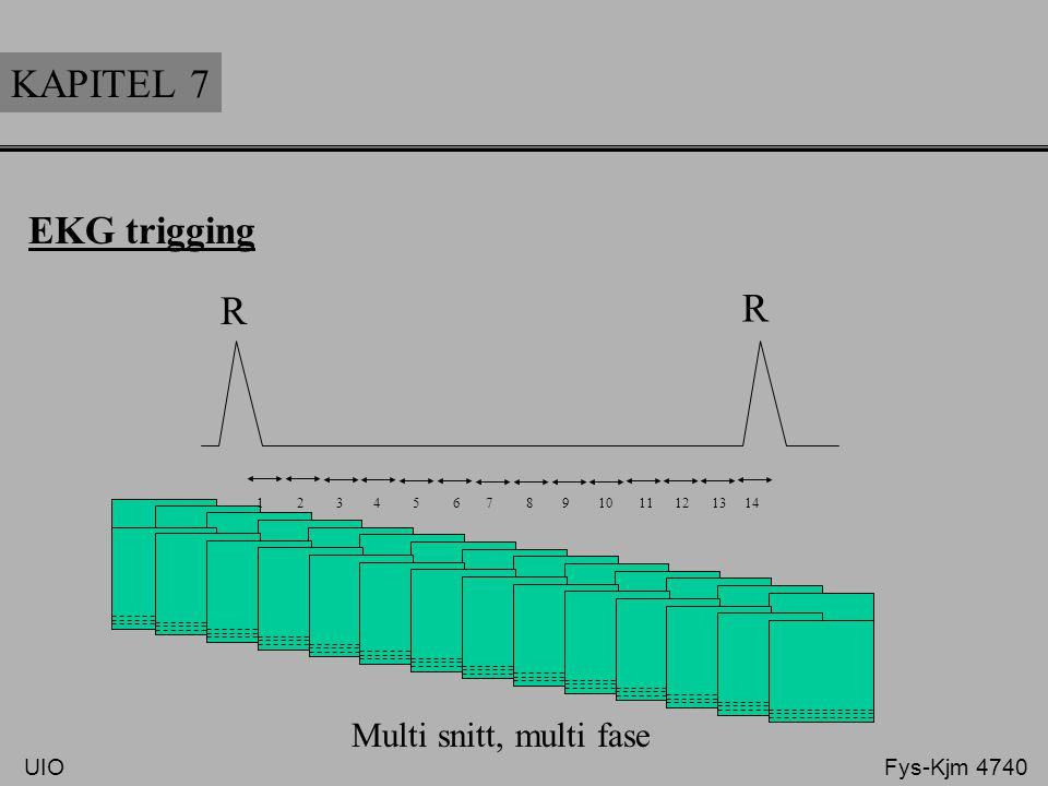 KAPITEL 7 EKG trigging R R 1 2 3 4 5 6 7 8 9 10 11 12 13 14 Multi snitt, multi fase UIO Fys-Kjm 4740