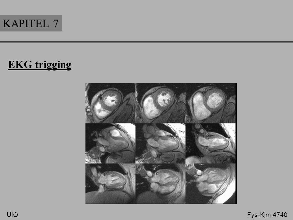 KAPITEL 7 EKG trigging UIO Fys-Kjm 4740