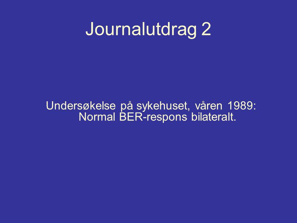 Journalutdrag 2 Undersøkelse på sykehuset, våren 1989: Normal BER-respons bilateralt.