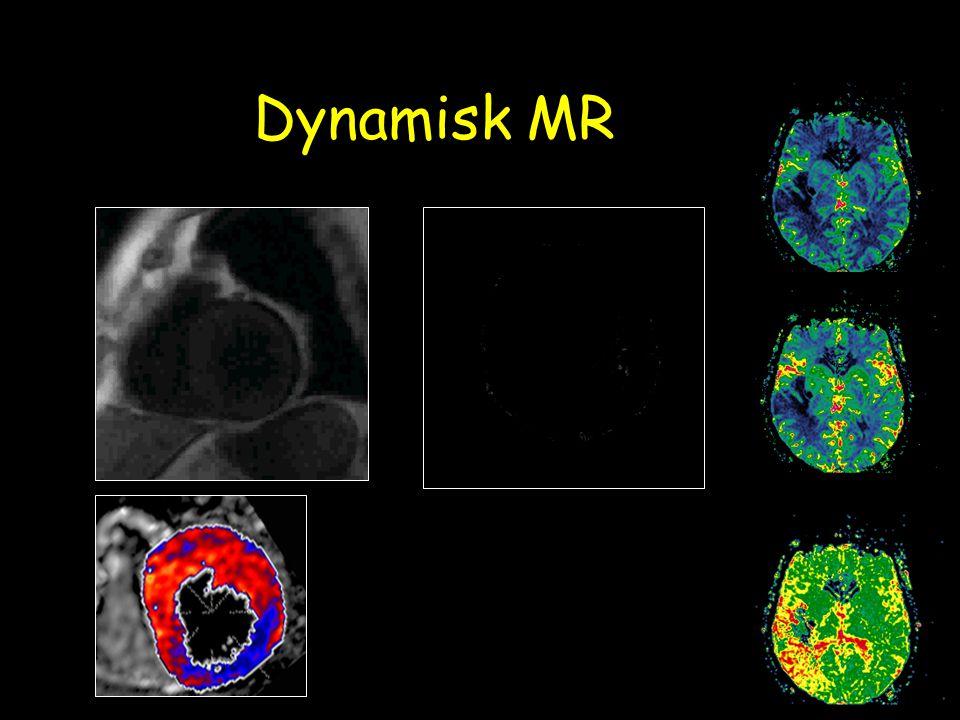 Dynamisk MR