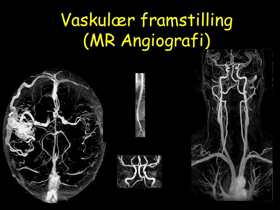 Vaskulær framstilling (MR Angiografi)
