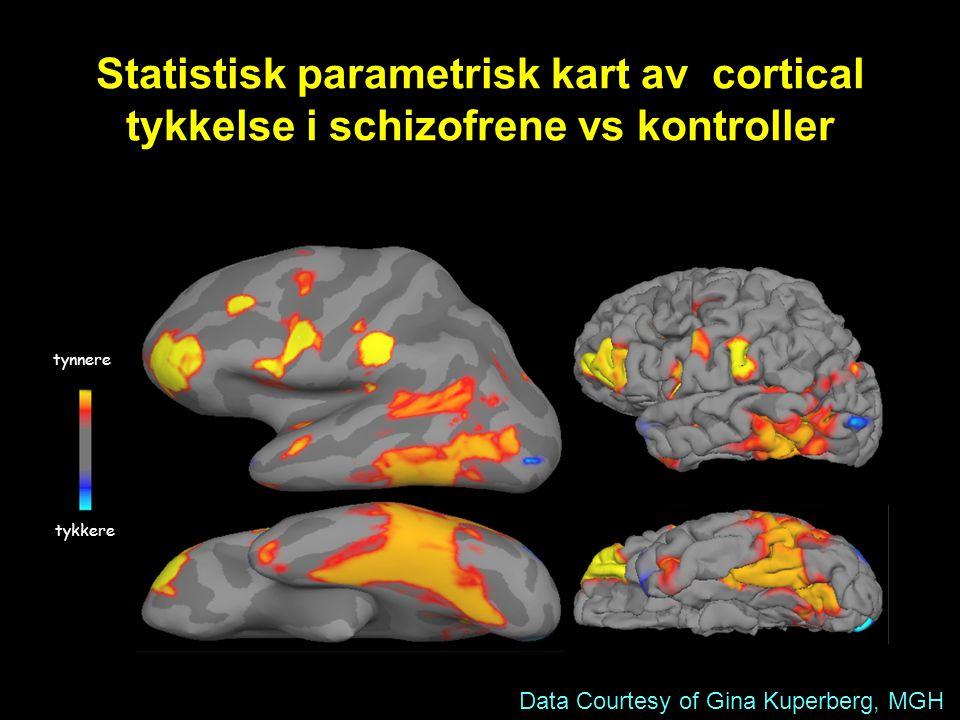 Data Courtesy of Gina Kuperberg, MGH tykkere tynnere Statistisk parametrisk kart av cortical tykkelse i schizofrene vs kontroller