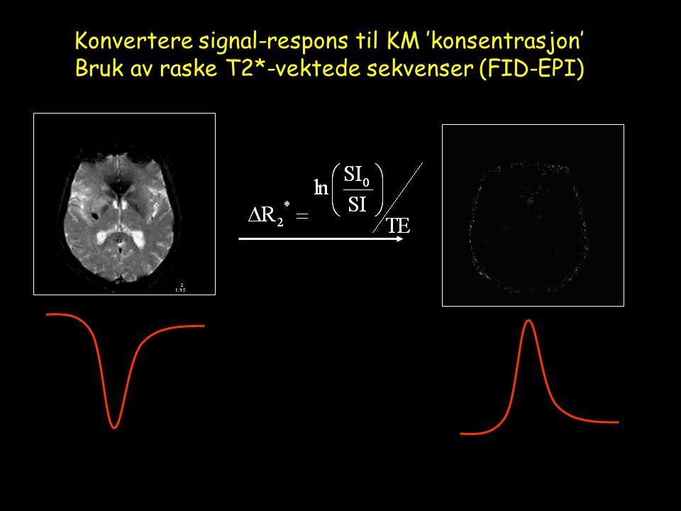 Konvertere signal-respons til KM 'konsentrasjon' Bruk av raske T2*-vektede sekvenser (FID-EPI)