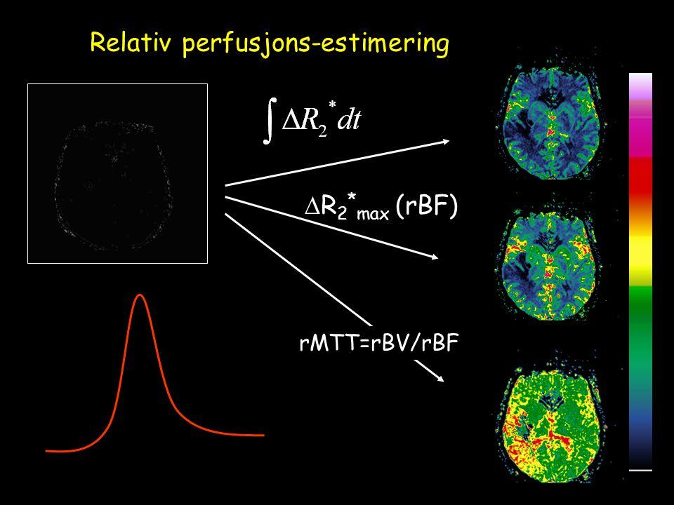 Relativ perfusjons-estimering  R 2 * max (rBF) (rBV) rMTT=rBV/rBF