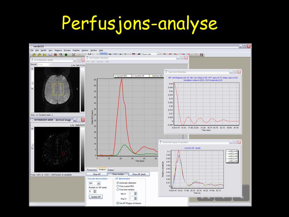 Perfusjons-analyse