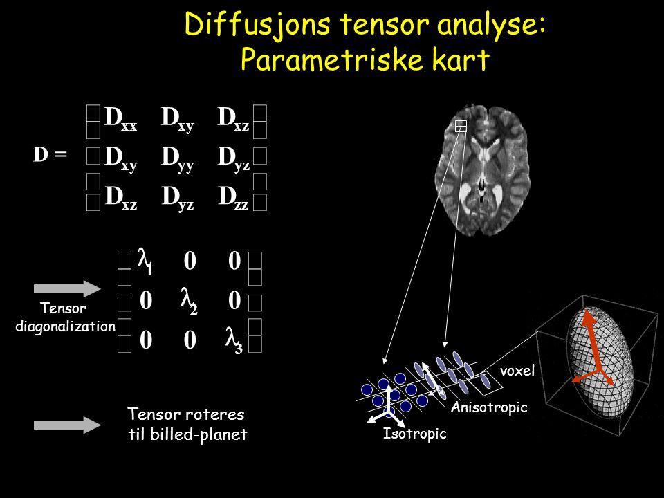 Diffusjons tensor analyse: Parametriske kart D =           zzyzxz yzyyxy xzxyxx DDD DDD DDD Tensor diagonalization           3 2 1