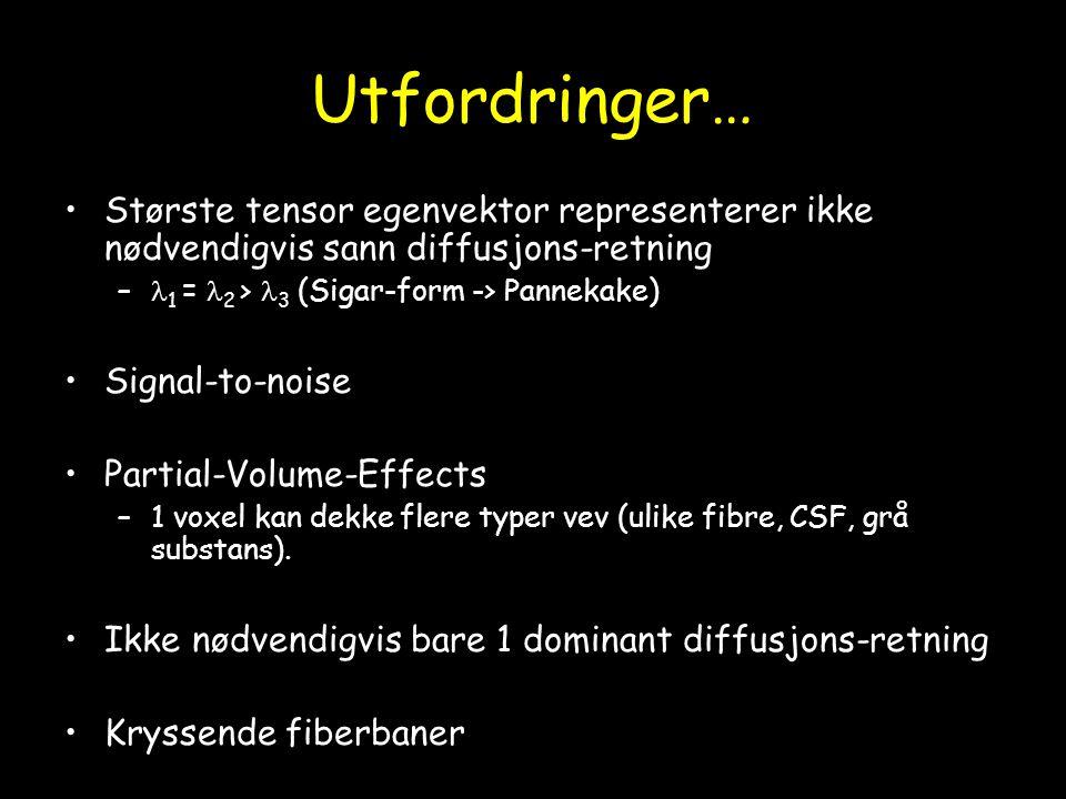 Utfordringer… Største tensor egenvektor representerer ikke nødvendigvis sann diffusjons-retning – 1 = 2 > 3 (Sigar-form -> Pannekake) Signal-to-noise