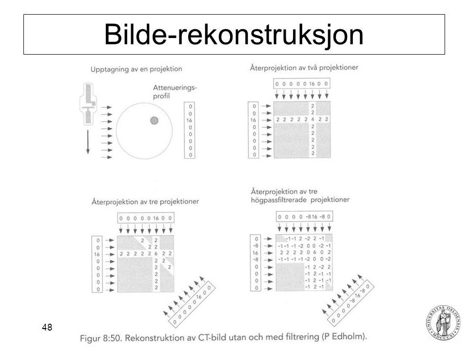 Fysisk institutt - Rikshospitalet 48 Bilde-rekonstruksjon