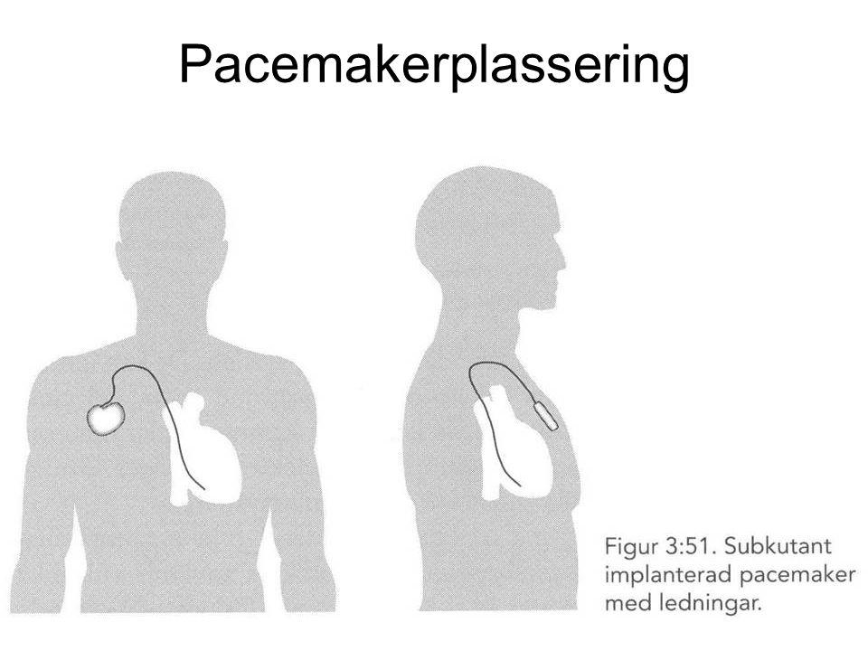 Fysisk institutt - Rikshospitalet 78 Pacemakerplassering