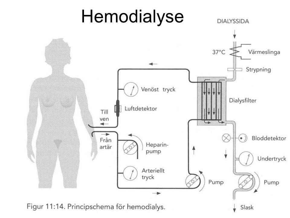 Fysisk institutt - Rikshospitalet 80 Hemodialyse