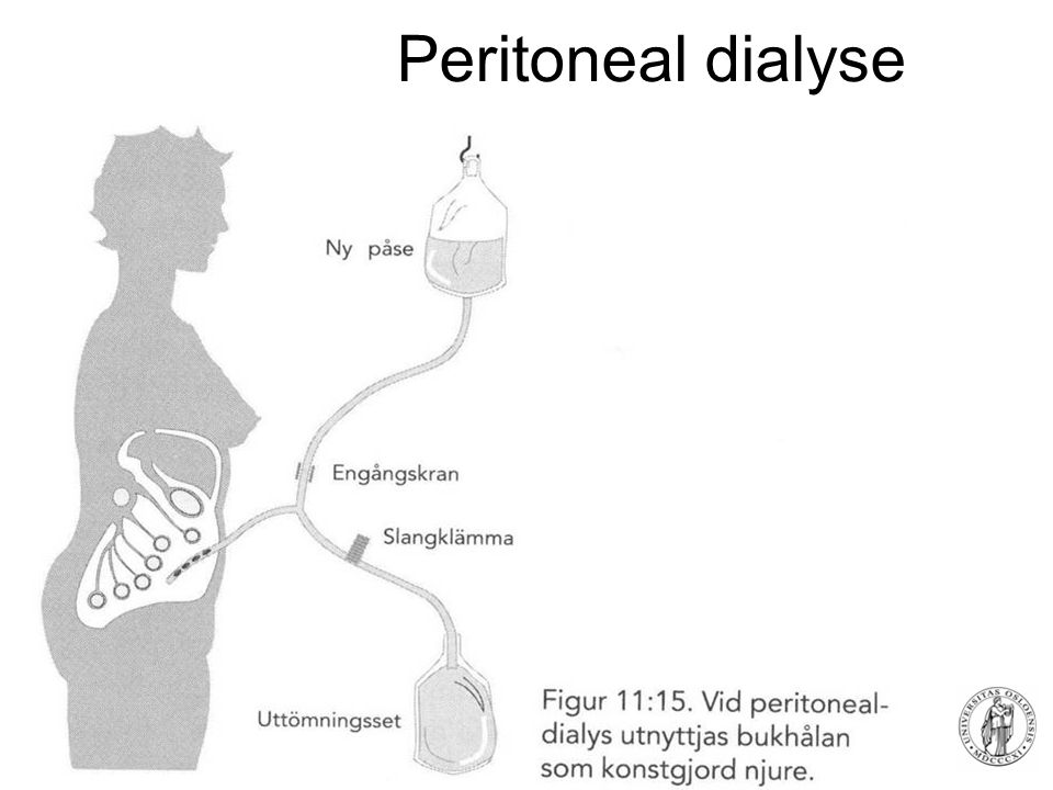 Fysisk institutt - Rikshospitalet 81 Peritoneal dialyse