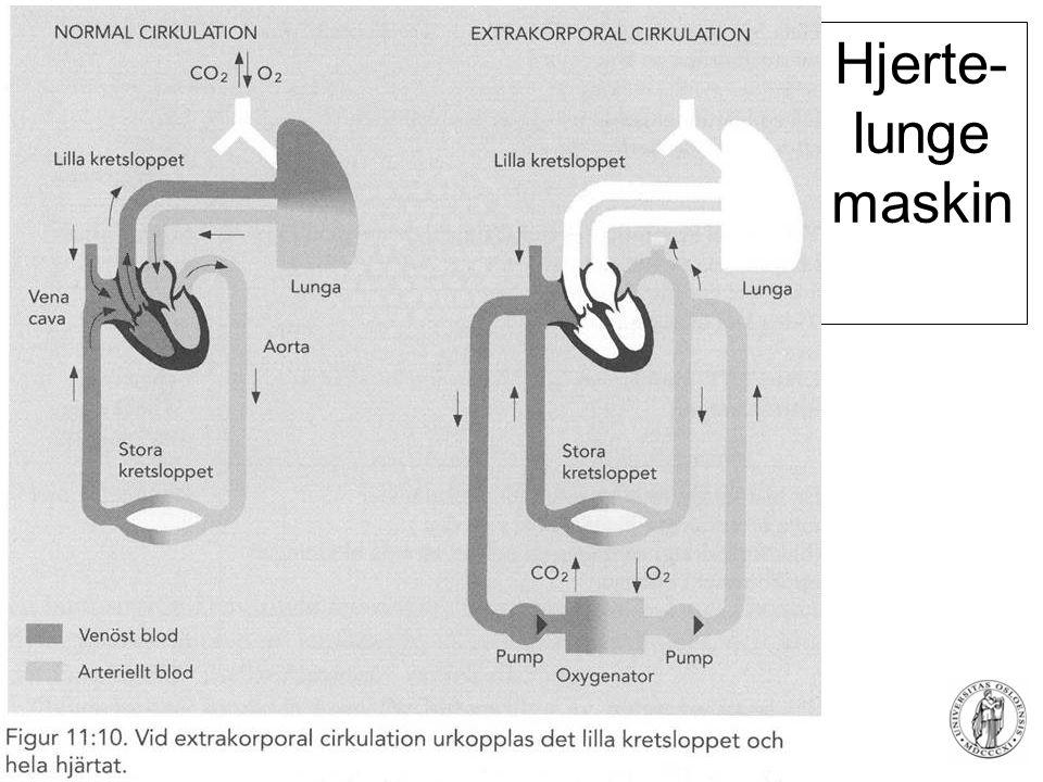 Fysisk institutt - Rikshospitalet 82 Hjerte- lunge maskin