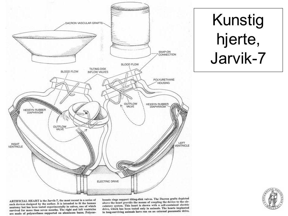 Fysisk institutt - Rikshospitalet 83 Kunstig hjerte, Jarvik-7