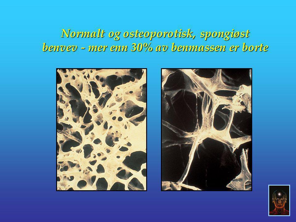 Normalt og osteoporotisk, spongiøst benvev - mer enn 30% av benmassen er borte