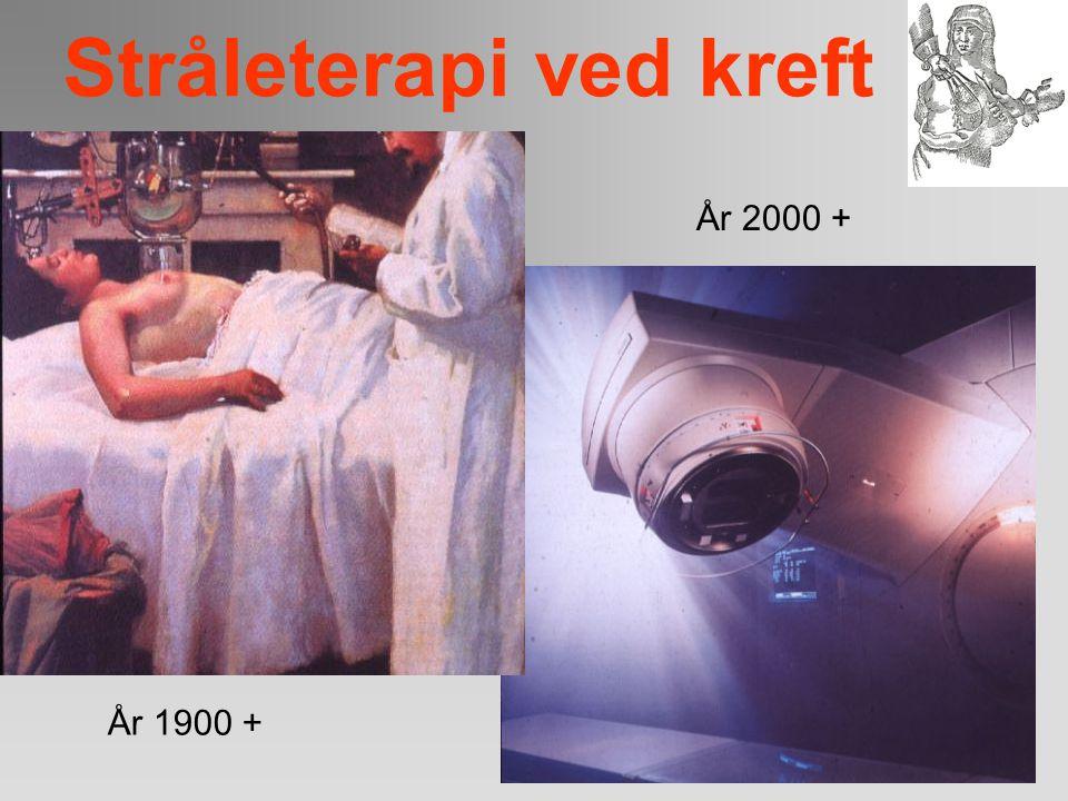 Stråleterapi ved kreft Land Storbritannia (1979) USA (1990) Nederland (1983) Sverige (2001) Canada (1987) Norge (2007) WHO-anbefalinger Prosent av all