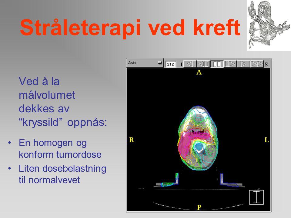Stråleterapi ved kreft For å oppnå en høy terapeutisk ratio er det nødvendig å avgrense stråledosen til det volum som skal behandles, samt skjerme nor