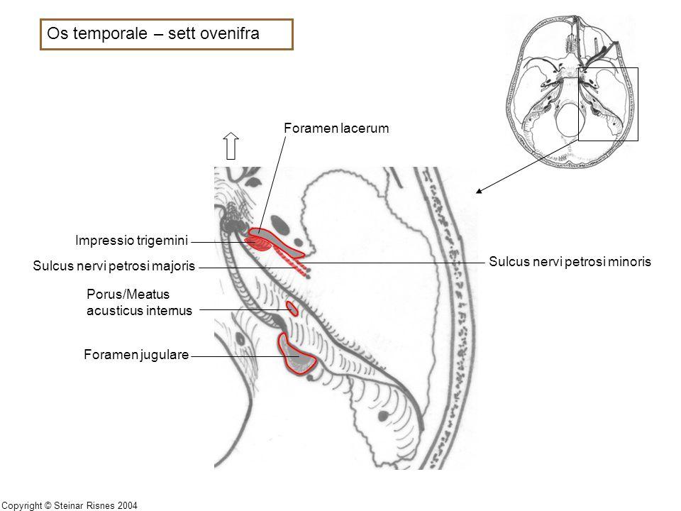 Os temporale – sett ovenifra Impressio trigemini Sulcus nervi petrosi minoris Sulcus nervi petrosi majoris Foramen jugulare Porus/Meatus acusticus int