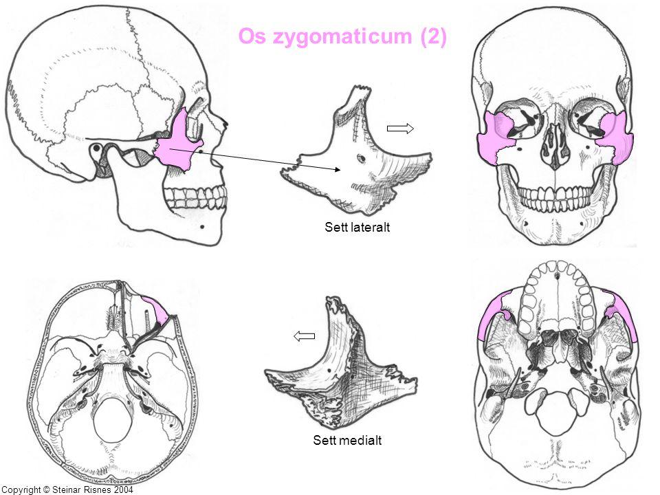 Os zygomaticum (2) Sett lateralt Sett medialt Copyright © Steinar Risnes 2004