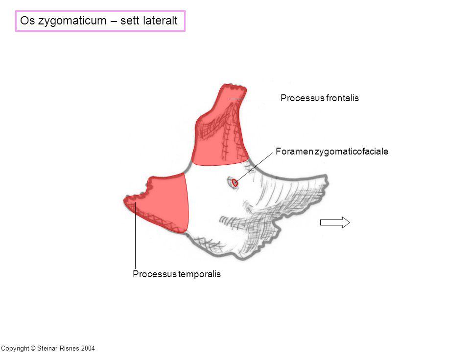 Os zygomaticum – sett lateralt Processus frontalis Foramen zygomaticofaciale Processus temporalis Copyright © Steinar Risnes 2004