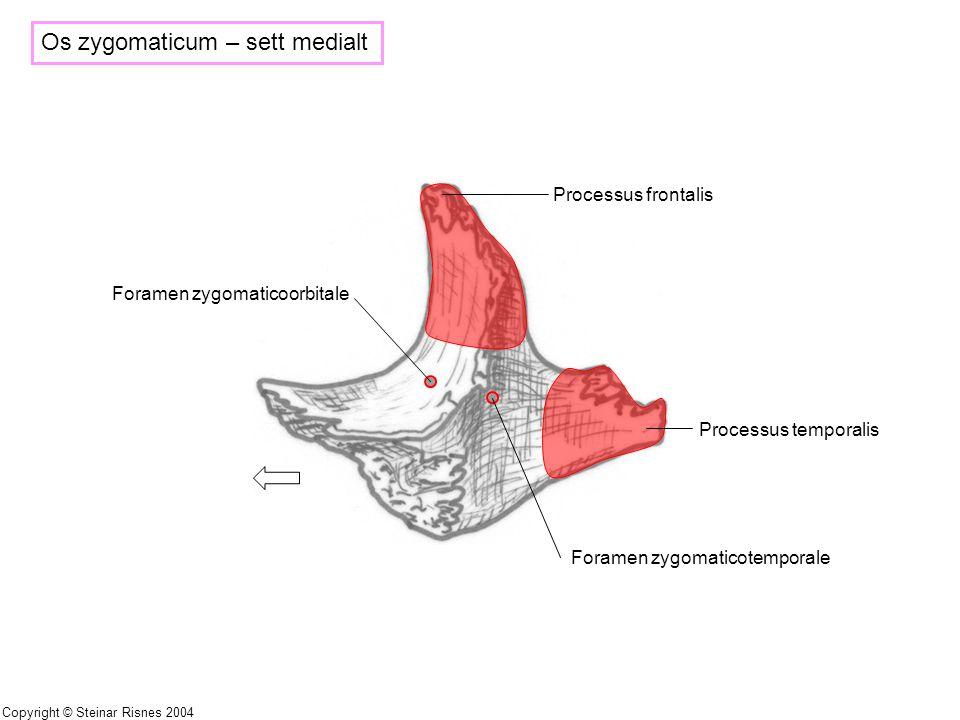 Os zygomaticum – sett medialt Processus frontalis Processus temporalis Foramen zygomaticotemporale Foramen zygomaticoorbitale Copyright © Steinar Risn