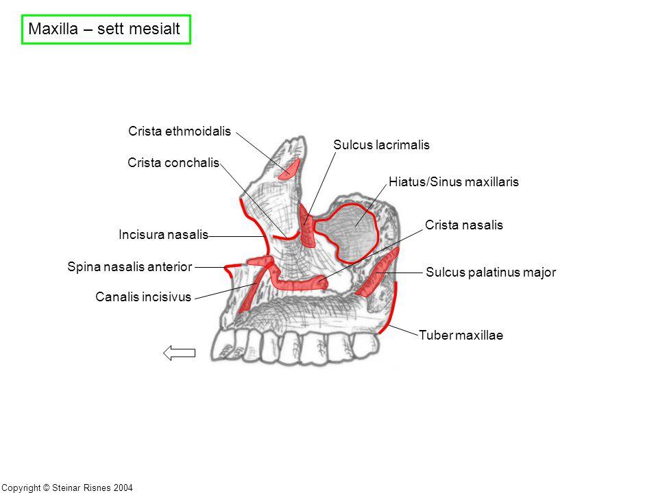 Maxilla – sett mesialt Sulcus lacrimalis Hiatus/Sinus maxillaris Sulcus palatinus major Tuber maxillae Crista ethmoidalis Crista conchalis Incisura na