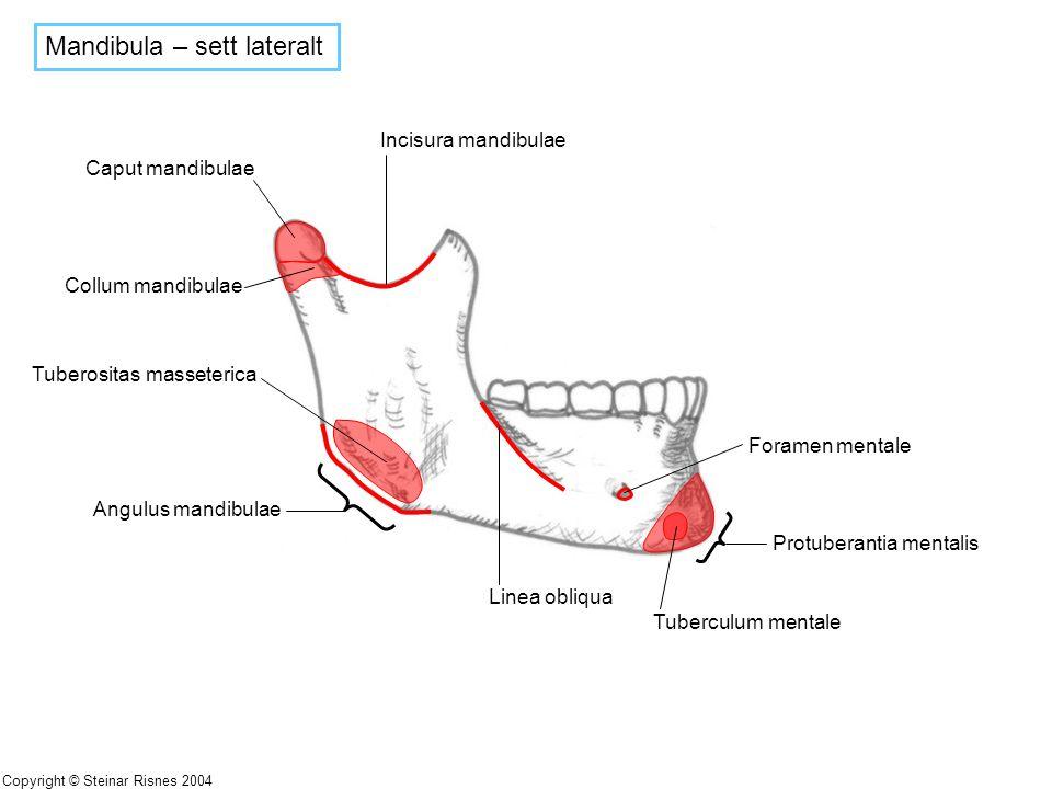 Mandibula – sett lateralt Incisura mandibulae Linea obliqua Protuberantia mentalis Tuberculum mentale Foramen mentale Angulus mandibulae Tuberositas m