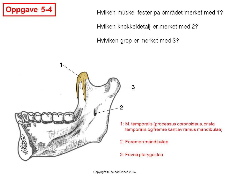 Oppgave 5-5 1 2 3 Hvilken struktur er merket med 1.