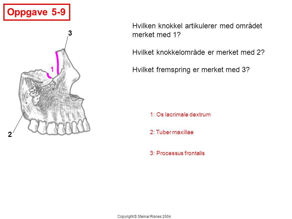 Oppgave 5-9 1 2 3 Hvilken knokkel artikulerer med området merket med 1? Hvilket knokkelområde er merket med 2? Hvilket fremspring er merket med 3? Cop