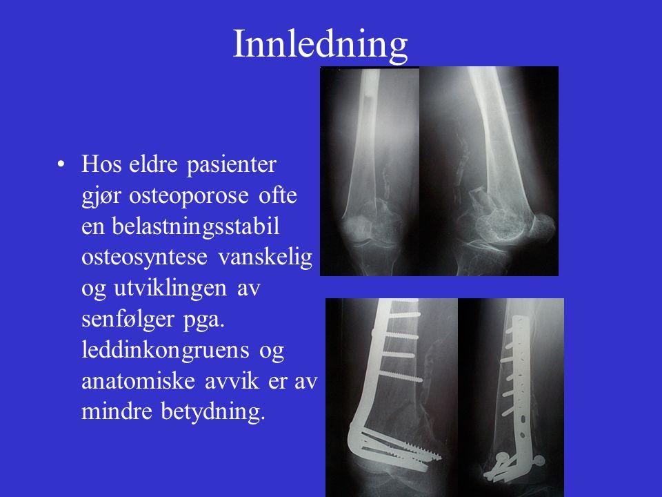 Innledning Hos eldre pasienter gjør osteoporose ofte en belastningsstabil osteosyntese vanskelig og utviklingen av senfølger pga. leddinkongruens og a