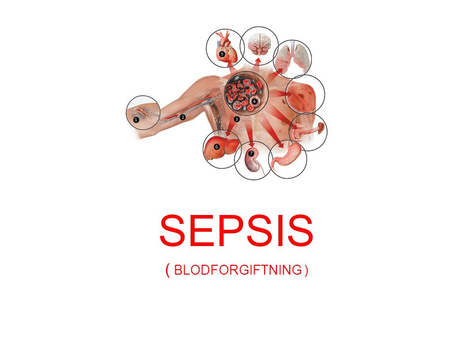 k SEPSIS ( BLODFORGIFTNING )