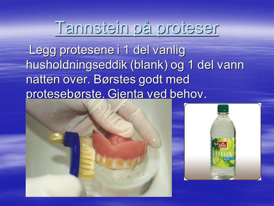 Tannstein på proteser Legg protesene i 1 del vanlig husholdningseddik (blank) og 1 del vann natten over.