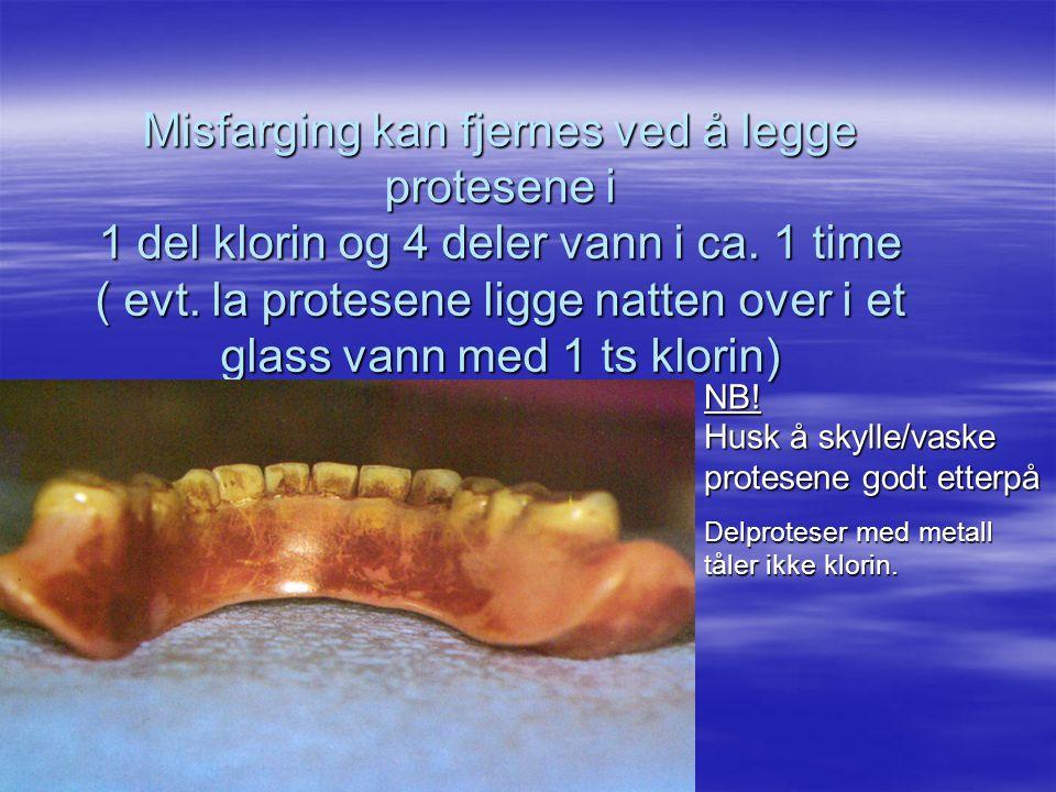Misfarging kan fjernes ved å legge protesene i 1 del klorin og 4 deler vann i ca.