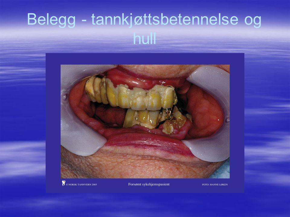 Belegg - tannkjøttsbetennelse og hull