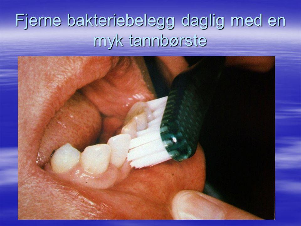 Fjerne bakteriebelegg daglig med en myk tannbørste