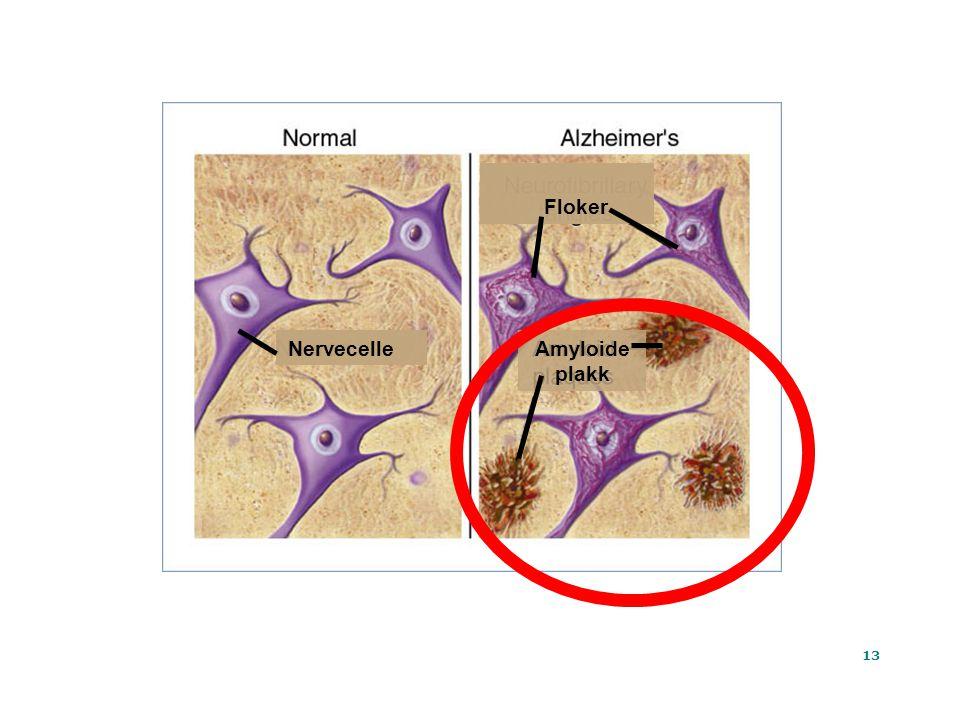 13 Ta Tat At Amyloide plakk Floker Nervecelle
