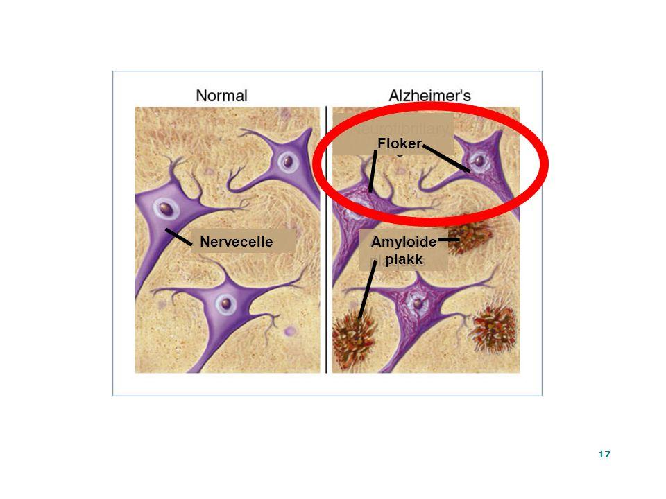 17 Ta Tat At Amyloide plakk Floker Nervecelle