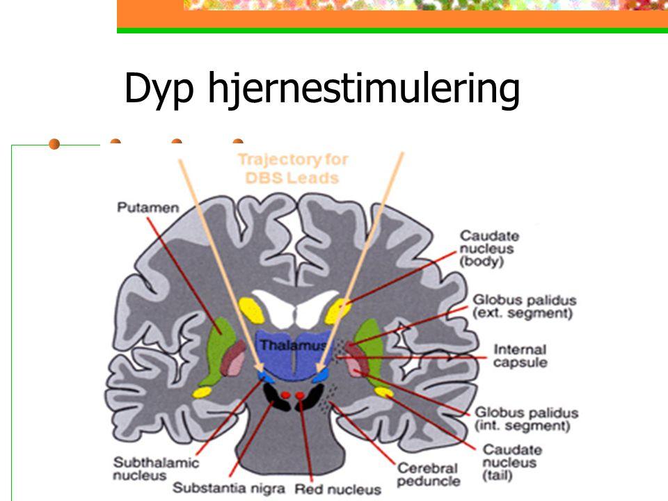 Dyp hjernestimulering