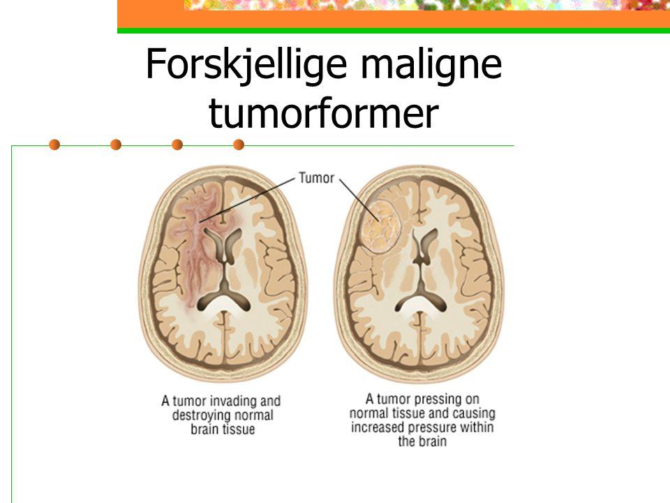 Forskjellige maligne tumorformer
