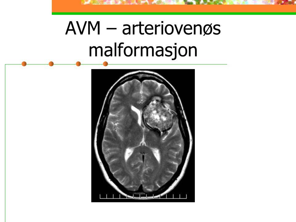AVM – arteriovenøs malformasjon