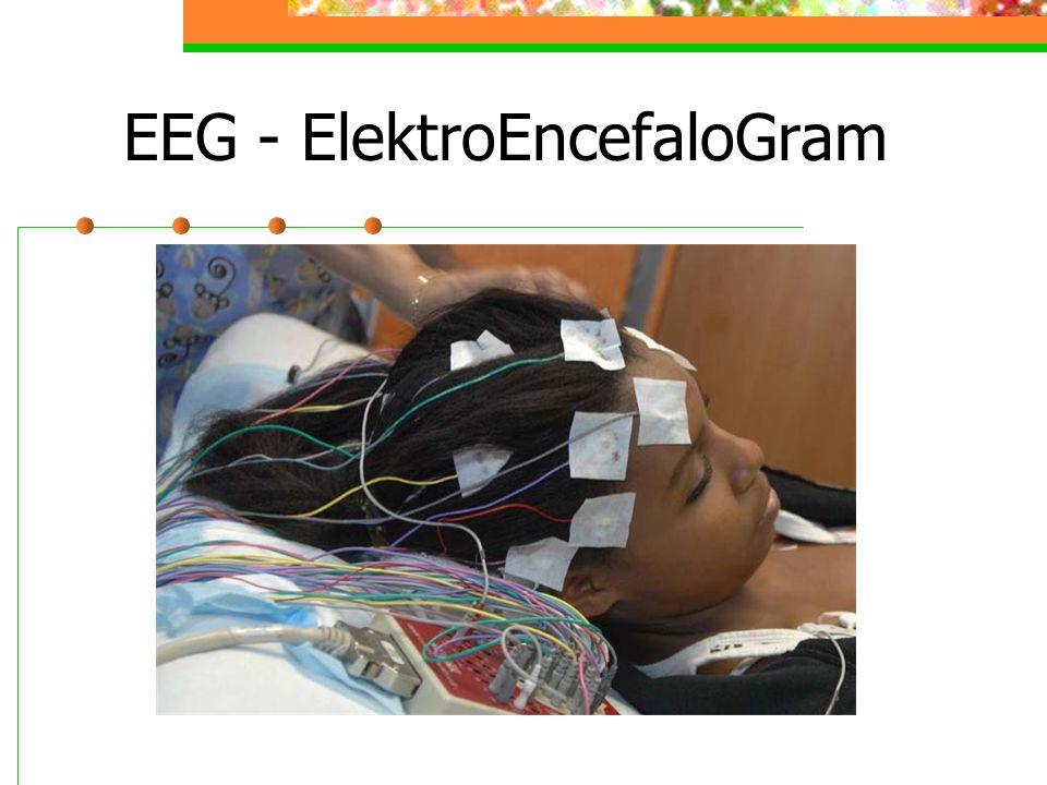 EEG - ElektroEncefaloGram