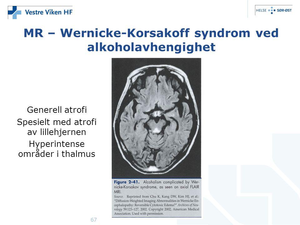 67 MR – Wernicke-Korsakoff syndrom ved alkoholavhengighet Generell atrofi Spesielt med atrofi av lillehjernen Hyperintense områder i thalmus