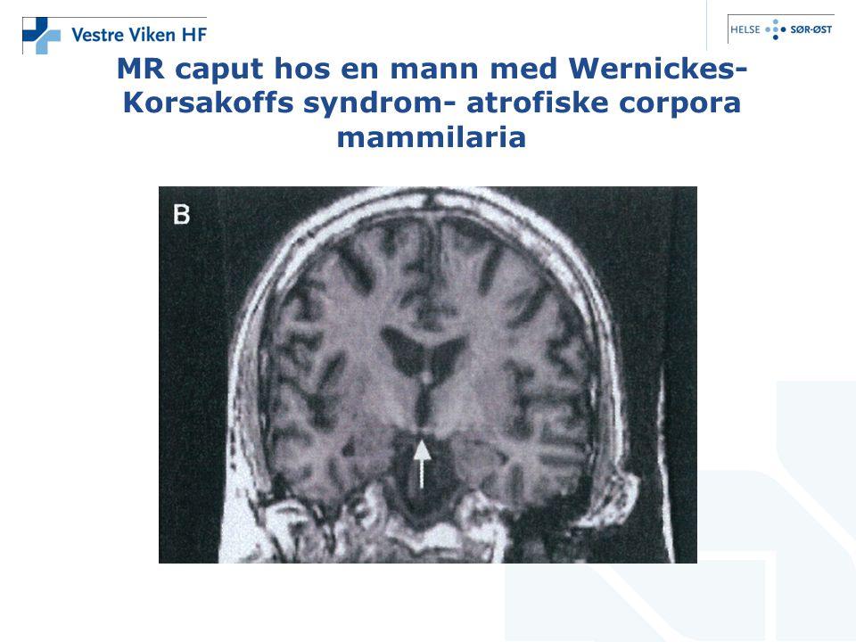MR caput hos en mann med Wernickes- Korsakoffs syndrom- atrofiske corpora mammilaria