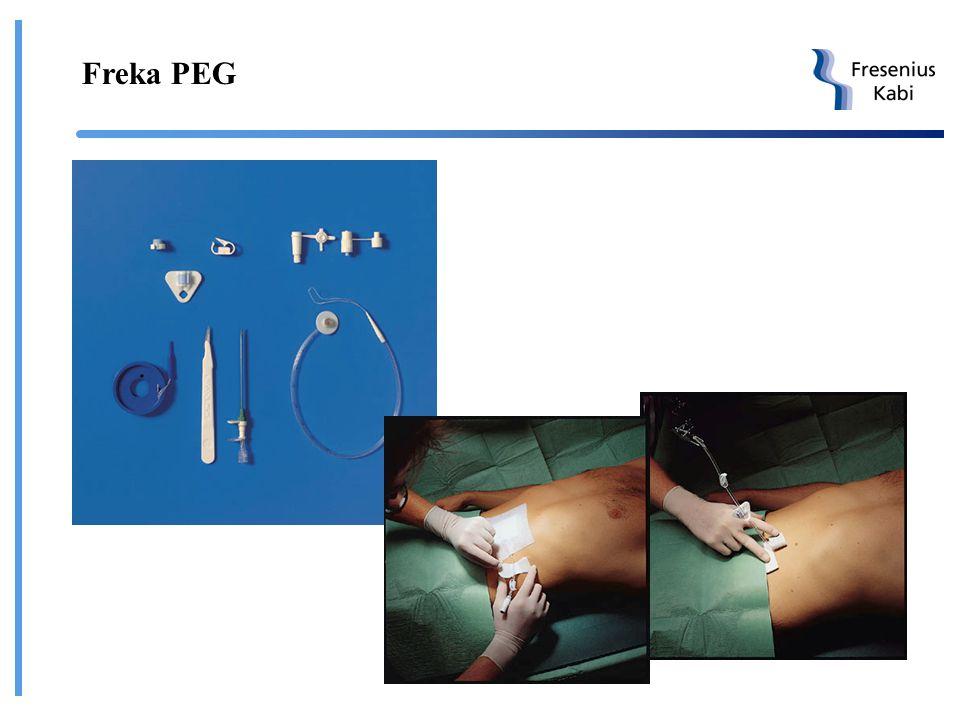 Freka-PEG PEG - Perkutan endoskopisk gastrostomi Ch 15