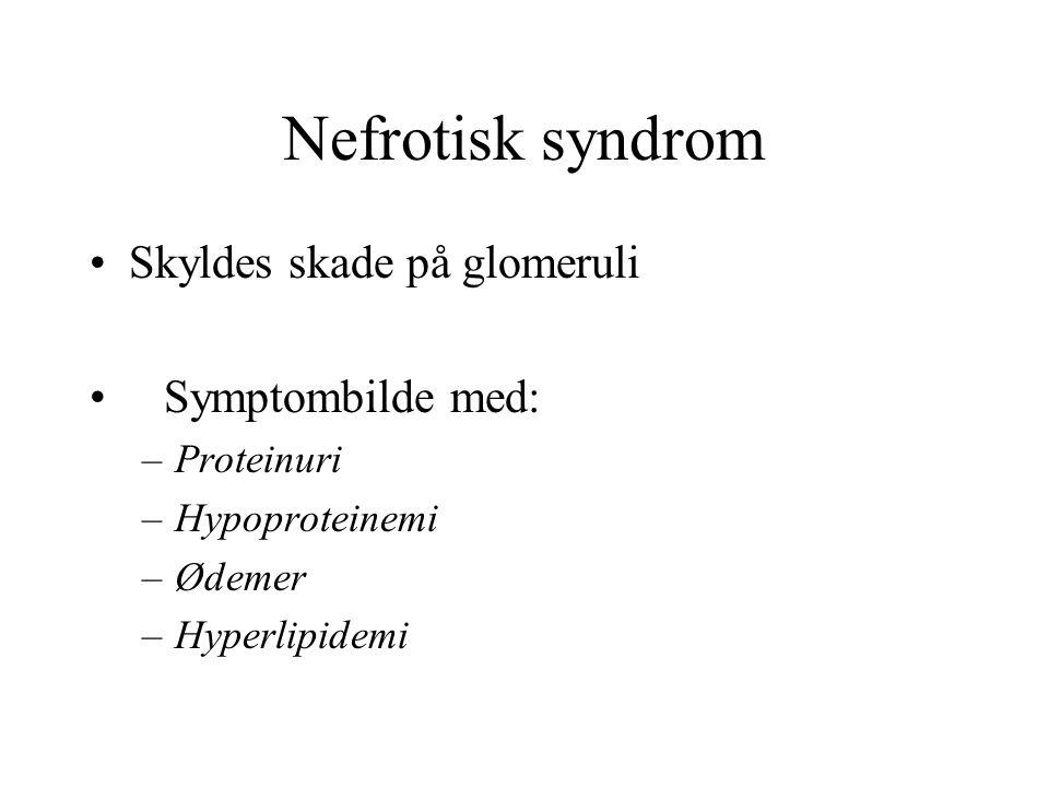 Nefrotisk syndrom Skyldes skade på glomeruli Symptombilde med: –Proteinuri –Hypoproteinemi –Ødemer –Hyperlipidemi